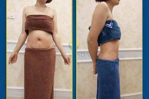 So sánh hai phương pháp giảm béo Nevada: Max Burn Lipo và Đẩy tinh chất giảm béo